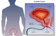 The surest way men can avoid prostate cancer is to ejaculate 21 times every month – Research